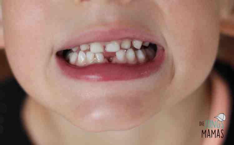 Die erste Zahnlücke_Die JungsMamas